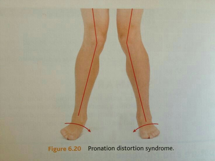 Illustration on howPronated feet causes pegeon toes