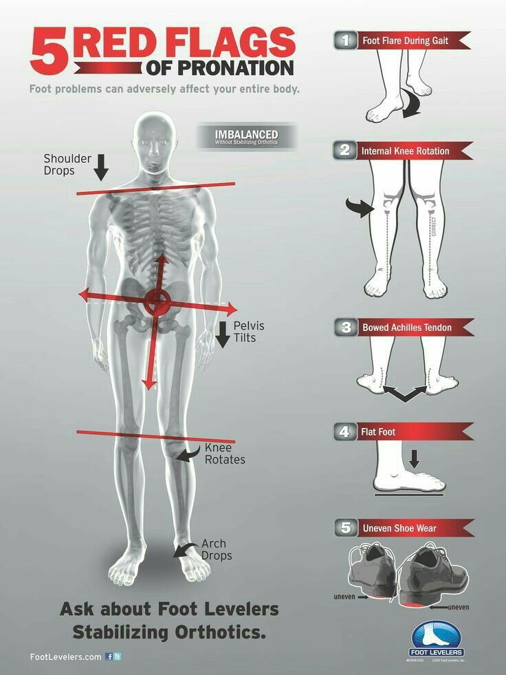 Illustration on how the feet affects the entire body posture