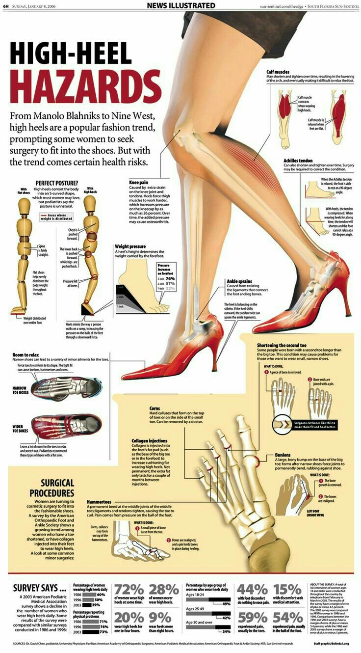 Infographics on how heels affects posture and health