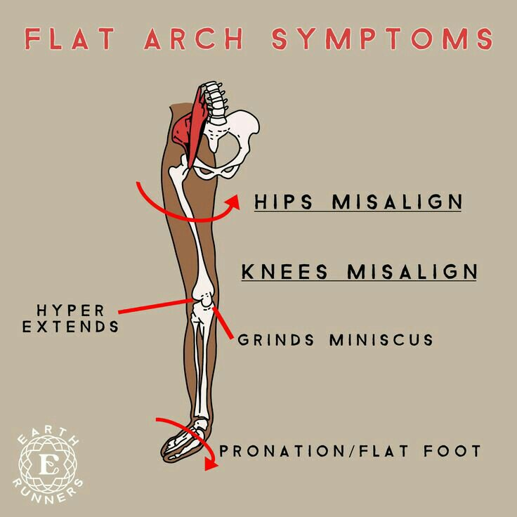Illustration of how a feet pronation affects the appearance of hip dips