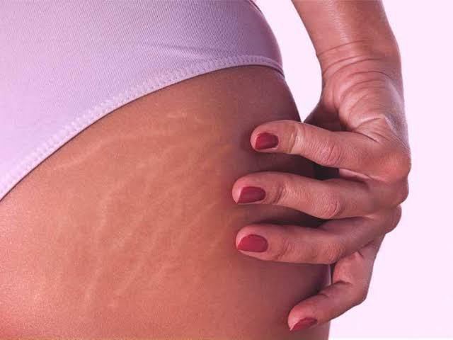 Workout induced stretch marks